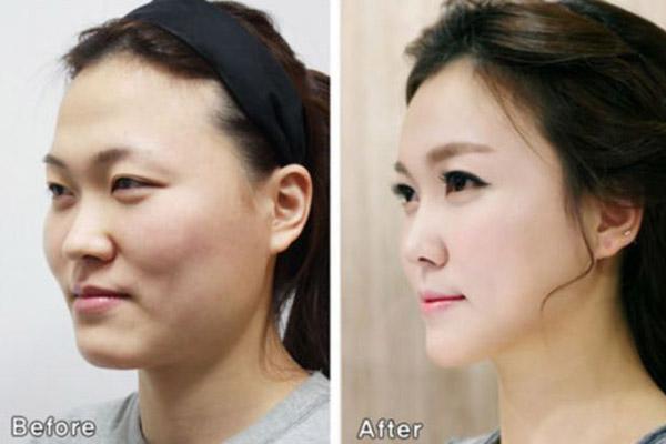 Habis Operasi Plastik, 3 Perempuan China Tertahan di Bandara Korea Selatan